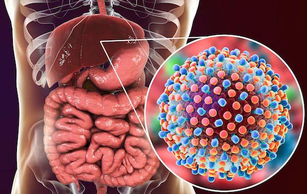Bệnh viêm gan B là gì? Cách phòng tránh hiệu quả