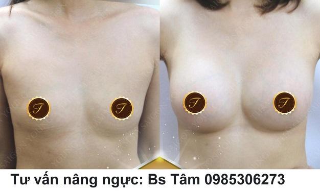 Đặt túi ngực
